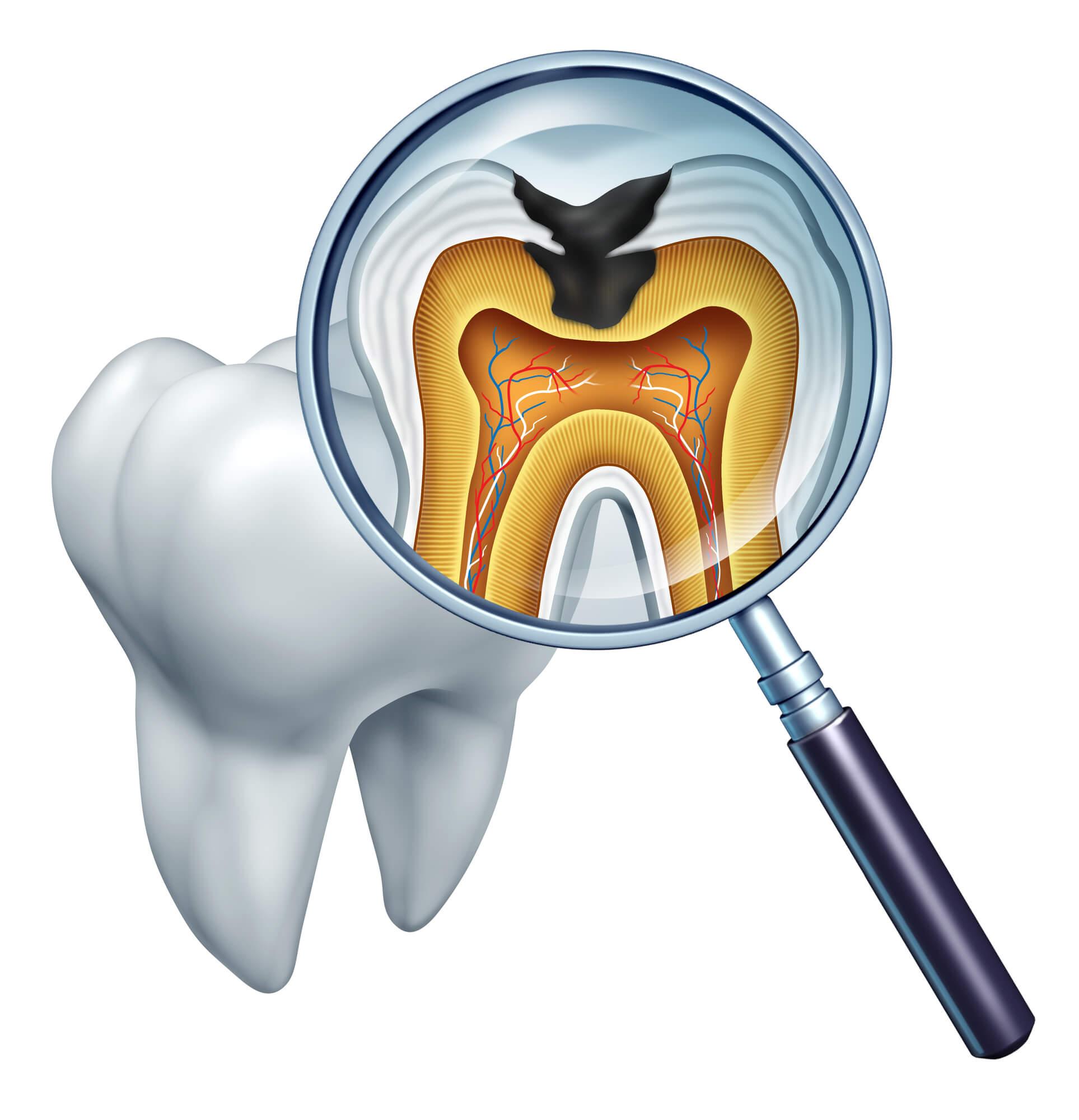 Do You Need an Endodontist 23226?
