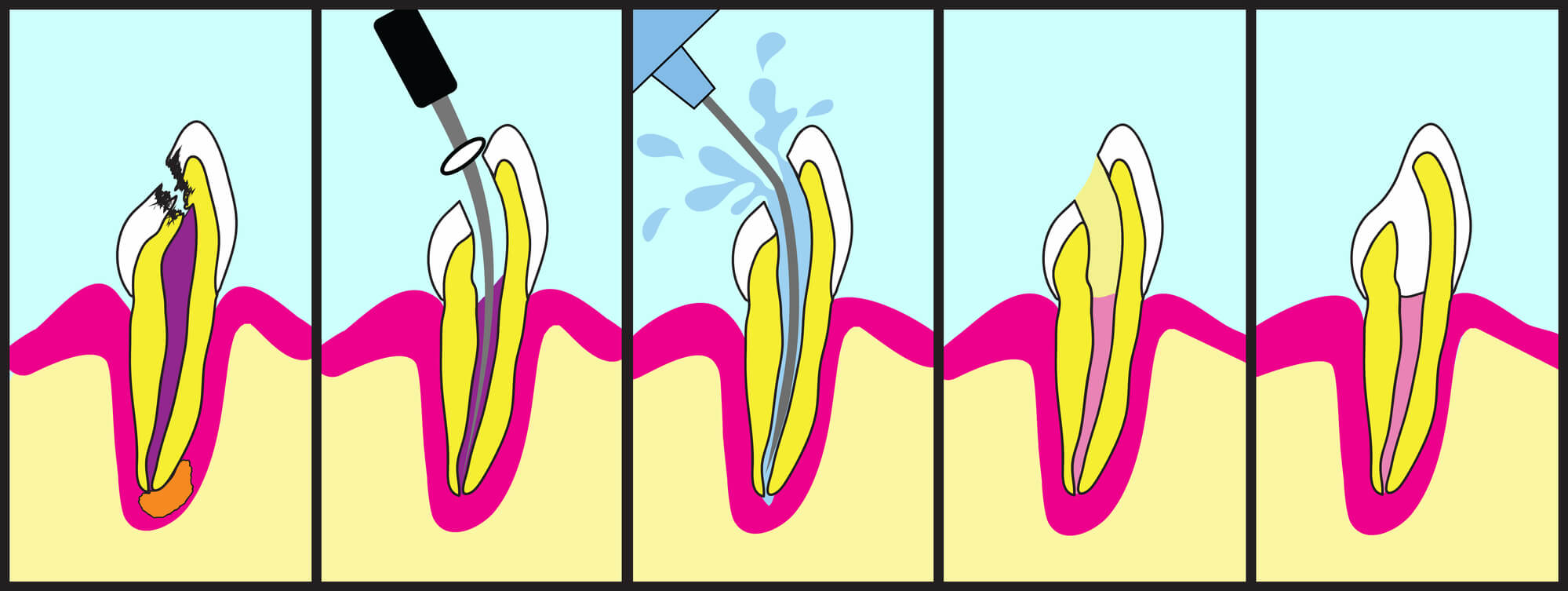 How to save tooth endodontist 23228?